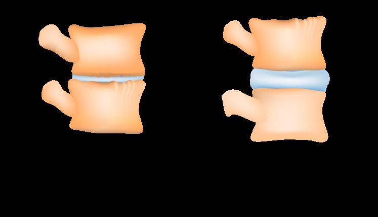 zmniejszenie obciążenia dysków kręgosłupa